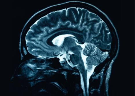 j0385807 mature market experts dementia
